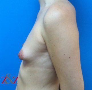 mama-tuberosa-1-antes-323x316