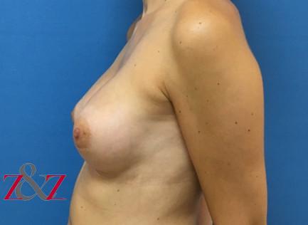 mama-tuberosa-1-despues